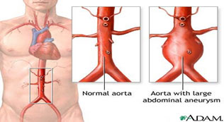 Normal aorta versus aorta with large abdominal aneurism.