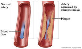 Normal artery versus artery narrowed by atherosclerosis.